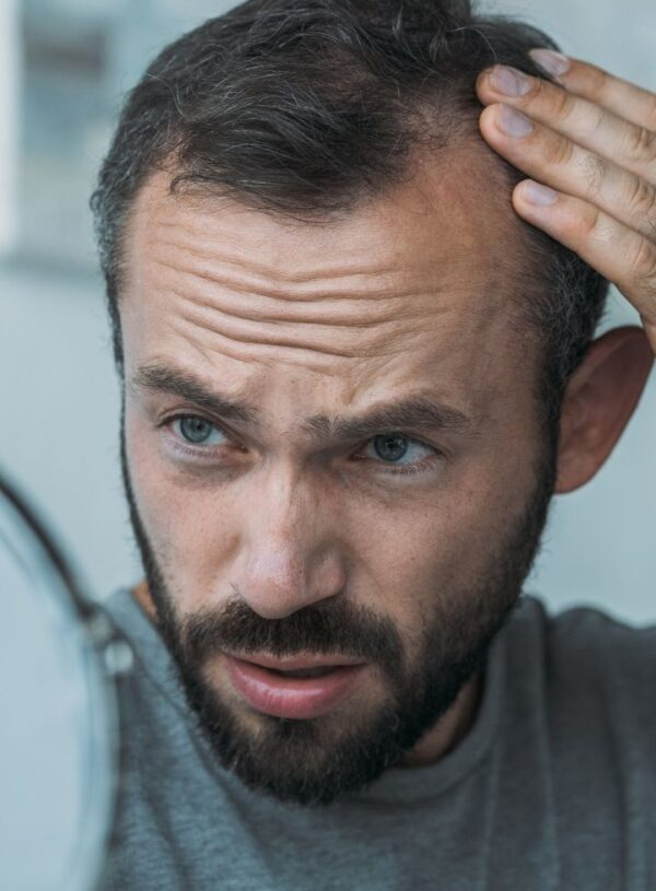 Hair Loss And How To Treat It